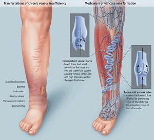 vein treatment forum  find information related to vein